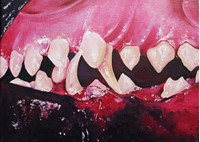 painting of teeth
